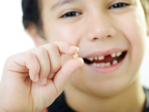 When Children Need Teeth Removed