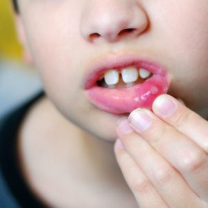 Kids Cold Sore from New Kids Center