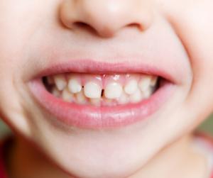 How to Stop Teeth Grinding in Children
